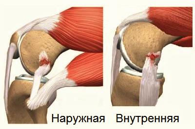 Разрывы коллатеральных связок колена