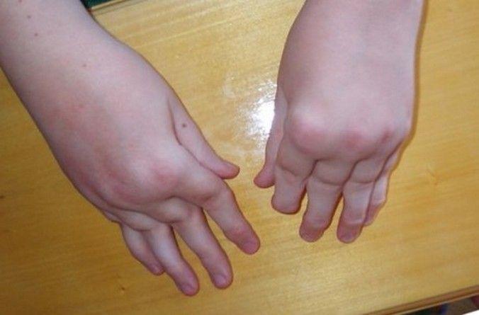 Провоцирующим фактором для ревматоидного артрита часто становятся различные инфекции.