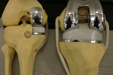 Частичный и полный эндопротезы для колена