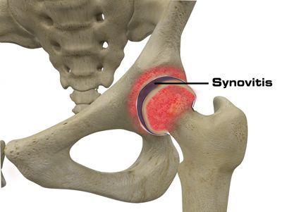 Часто инфекционное воспалительный процесс в сочленениях сопровождается синовитом.