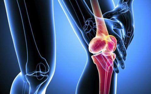 Дегенеративно-дистрофические изменения при остеохондрозе сочленений могут привести к инвалидности.