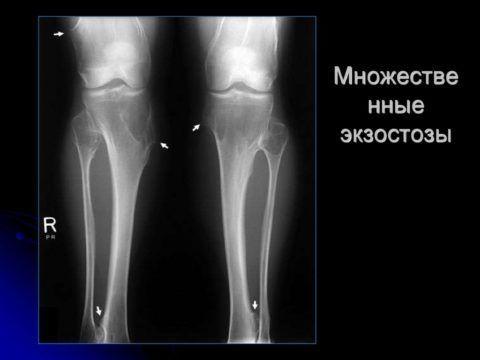 Экзостозы образуются с наружной стороны костных тканей.