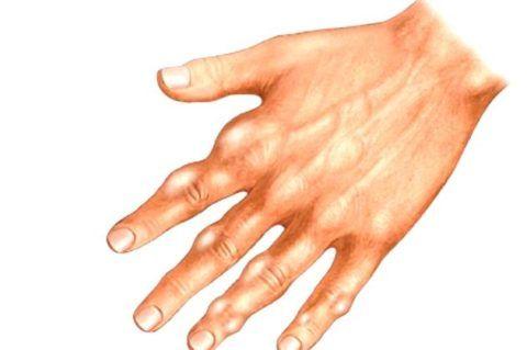 Если кистозные образования поражают пальцы рук, то могут значительно затруднять мелкую моторику.