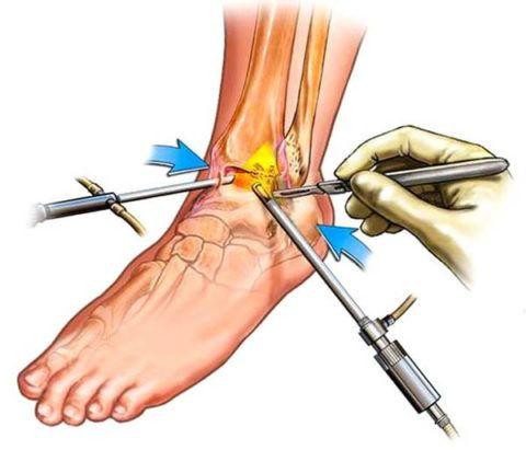 Если требуется небольшое иссечение тканей голеностопа, то выполняют артроскопическую операцию.