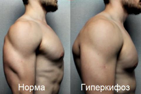 Гиперкифоз – чрезмерный изгиб грудного отдела позвоночного столба кпереди