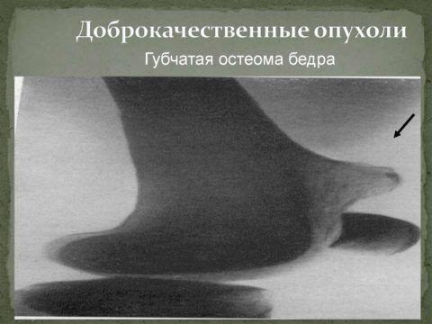 Губчатая форма – более «рыхлая», способна смещаться в сторону от кости.