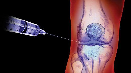 Внутрисуставные инъекции: показания и противопоказания, используемые средства, проведение процедуры