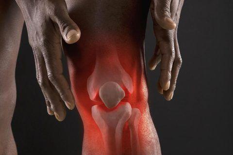 К артриту могут приводить различные инфекции в организме.