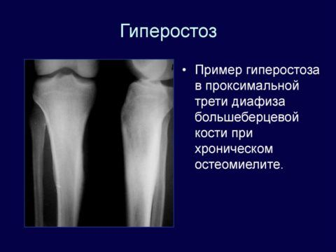 К гиперстозам относятся множественные опухоли, которые обычно пересекают костные ткани по окружности.