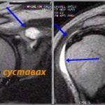 МРТ-диагностика поможет установить точную картину состояния суставных тканей.