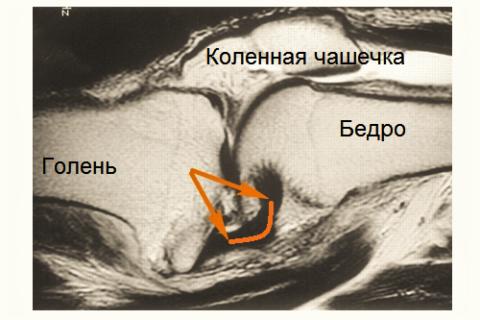 МРТ-снимок разрыва задней крестообразной связки колена