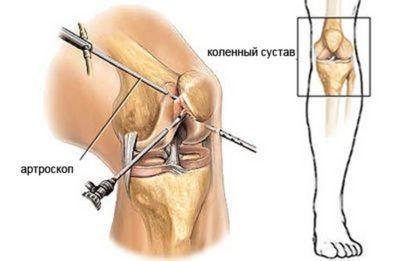 На колене обычно выполняют частичное иссечение пораженных тканей, при этом выбирают малотравматичный тип оперативного вмешательства (на фото).