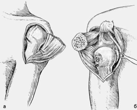 Показанием для резекции плечевого соединения может послужить гнойный остеомиелит.