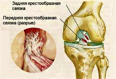 Повреждения связок