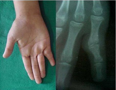 Анкилоз сустава: причины, симптомы, классификация, методы лечения и профилактики патологии