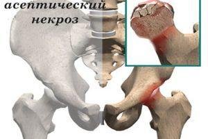 При асептическом некрозе омертвление тканей происходит из-за нарушения кровообращения в суставах