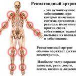 При аутоимунных болезнях могут происходить изменения в суставных тканях.