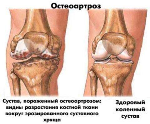 При дегенеративно-дистрофических изменениях в суставных тканях у больного часто «жжет» в мышцах и сочленениях.