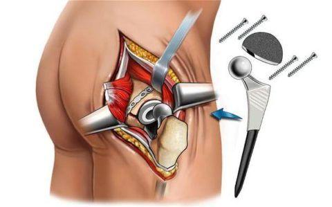 При необратимых процессах в суставных тканях иногда больному рекомендуют полную замену тазобедренного сустава на искусственный протез.