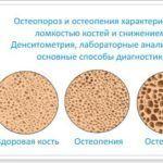 При остеопорозе иногда образуются кистозные образования в суставных соединениях.