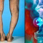 При ревматическом остеоартрите иногда применяются уколы внутрь сочленения.