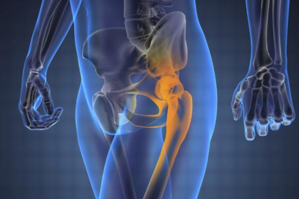 Киста тазобедренного сустава: причины, симптомы, виды образований и методы лечения