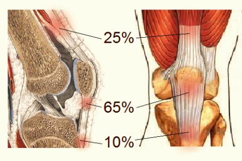 Статистика локализации тендинита в связке коленной чашечки
