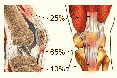 Тендинит коленного сустава: симптоматика, алгоритм лечения, упражнения ЛФК