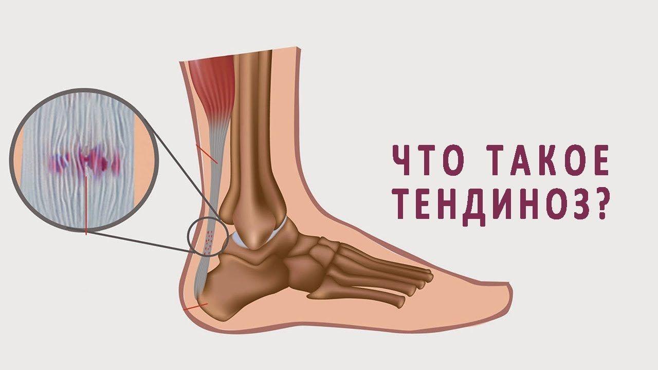 Тендиноз суставов: лечение и профилактика, особенности заболевания и его последствия