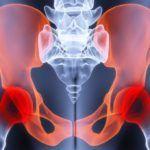 Травмы таза могут послужить толчком для появления различных новообразований в суставных тканях.