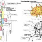 Увеличение регионарных лимфоузлов может указывать на наличие острого воспалительного процесса в организме.