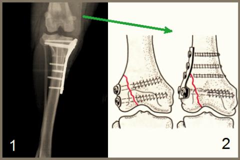 Варианты остеосинтеза верхнего сегмента большеберцовой кости (1) и наружного мыщелка бедренной кости (2)