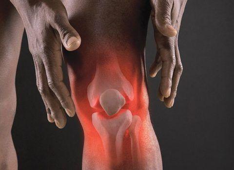 Воспалительные процессы в суставных соединениях могут привести к развитию в них остеохондроза.