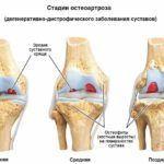 Дегенеративные патологии в суставных тканях могут оказывать воздействие на прилегающие мягкие ткани и нервные волокна.
