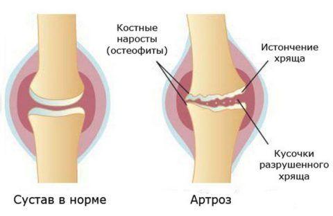 Дистрофическо-дегенеративные заболевания суставов могут приводить к появлению аномальных костных образований.