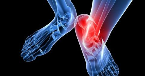К патологическому разрастанию костной ткани сочленений могут привести воспаления.