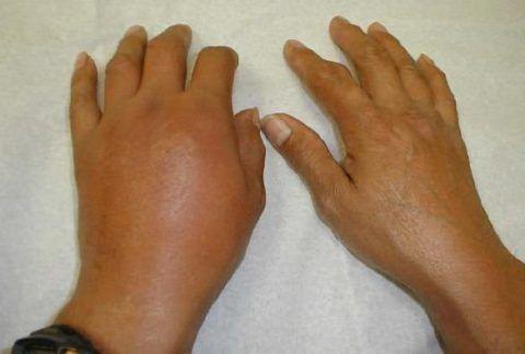 Наиболее часто распухшее суставное соединение становится следствием воспалительного процесса.