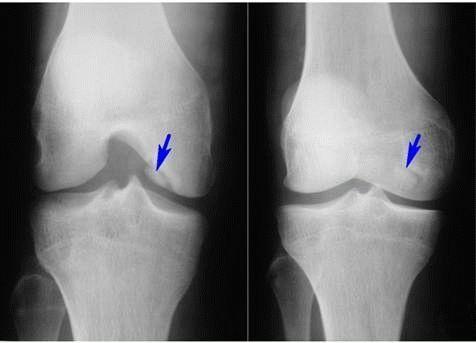 Остеофиты суставов: лечение, особенности проявления, причины и профилактика