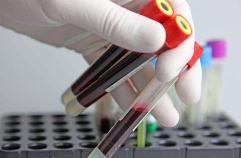 Перед проведением процедуры придется пройти ряд лабораторный исследований.