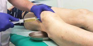 После откачивания жидкости в колене, сочленение могут промыть раствором антисептика.