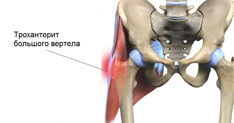 Трохантерит тазобедренного сустава: лечение заболевания, его виды, симптомы и причины возникновения