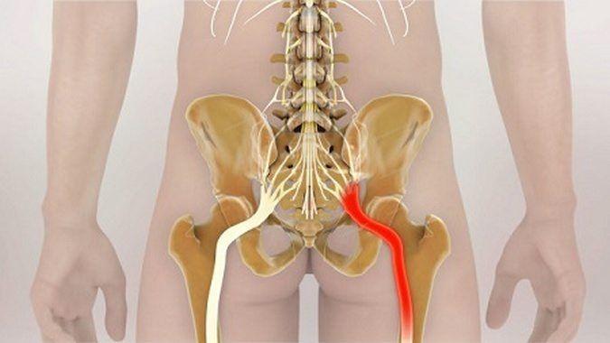 Ущемление нерва в суставе: лечение, причины возникновения проблемы, меры профилактики