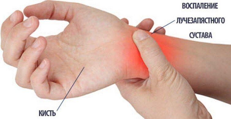 Изображение - Воспаление лучезапястного сустава лечение 45-5