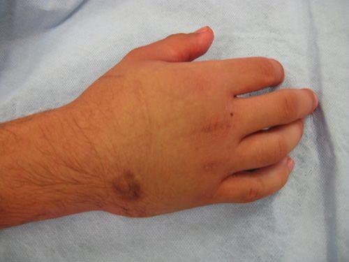 Изображение - Воспаление лучезапястного сустава лечение 45-6
