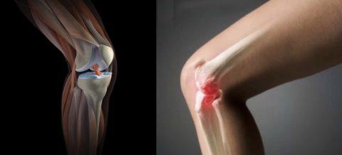 Чем опасны травмы колена.