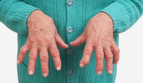 Изображение - Воспаление лучезапястного сустава лечение deformatsiya-sustavov-480x280