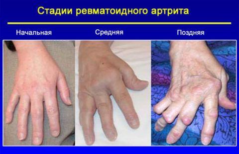 Изображение - Воспаление лучезапястного сустава лечение formirovanie-ankilozov-na-posledney-stadii-zabolev-480x310