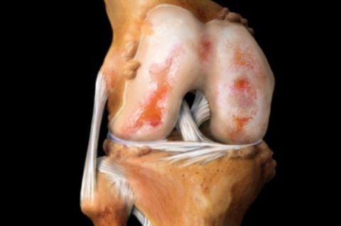 На фото гонартроз коленного сустава