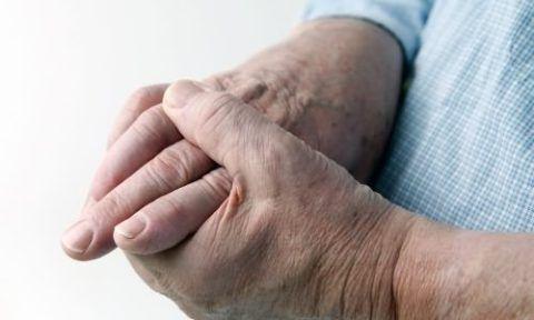 Изображение - Воспаление лучезапястного сустава лечение nachalnaya-stadiya-zabolevaniya-480x288