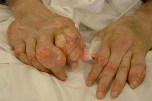 Изображение - Воспаление лучезапястного сустава лечение podagra